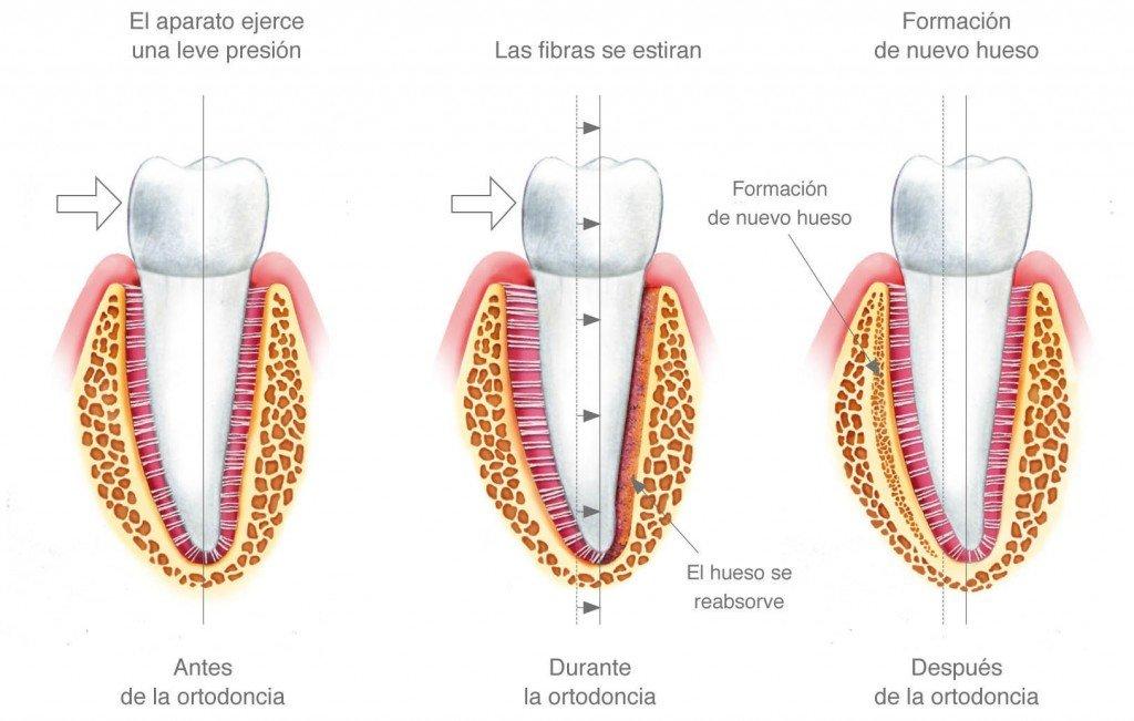 explica el movimiento lento de los dientes durante el tratamiento de ortodoncia y la contínua eliminación y creación de hueso alrededor de ellos durante el proceso