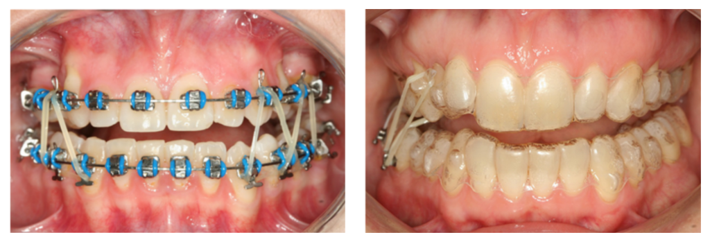 elasticos ortodoncia clases 2 y 3