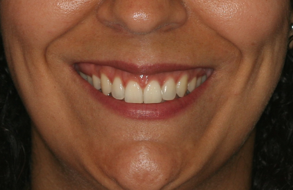 Después de ser atendido por la Doctora Maite, en nuestra Clínica Dental experta en tratamientos de ortodoncia