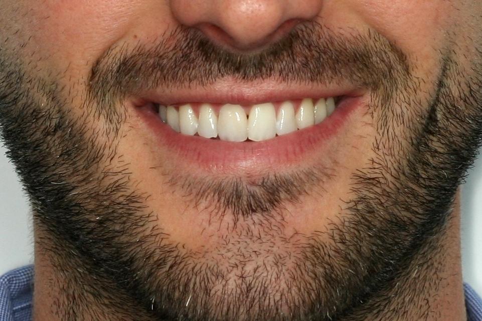 Antes de un tratamiento de Ortodoncia Insignia, a manode nuestra doctora Maite, en la Clínica dental en Cartagena