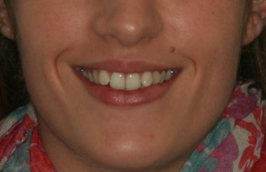 Después de un tratamiento de Ortodoncia Damon