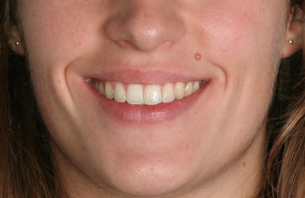 Despues de un tratamiento en nuestra Clínica dental en Cartagena
