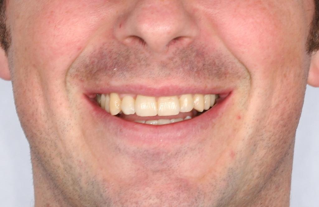 Resultado de un tratamiento de Ortodoncia en Ortonova, tu clínica dental en Cartagena, Murcia